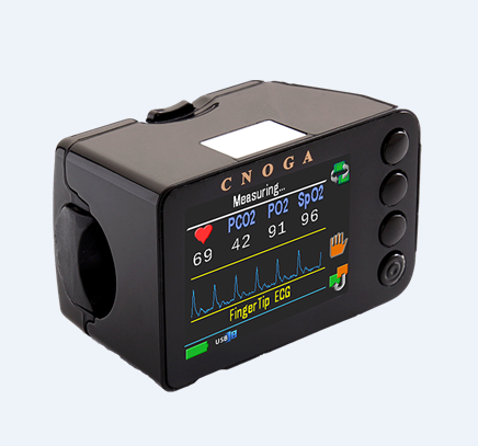 上海供应希诺嘉MTX 无创多参数检测仪 Matrix Monitor